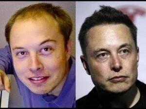 אילון מאסק לפני ואחרי השתלת שיער לגברים