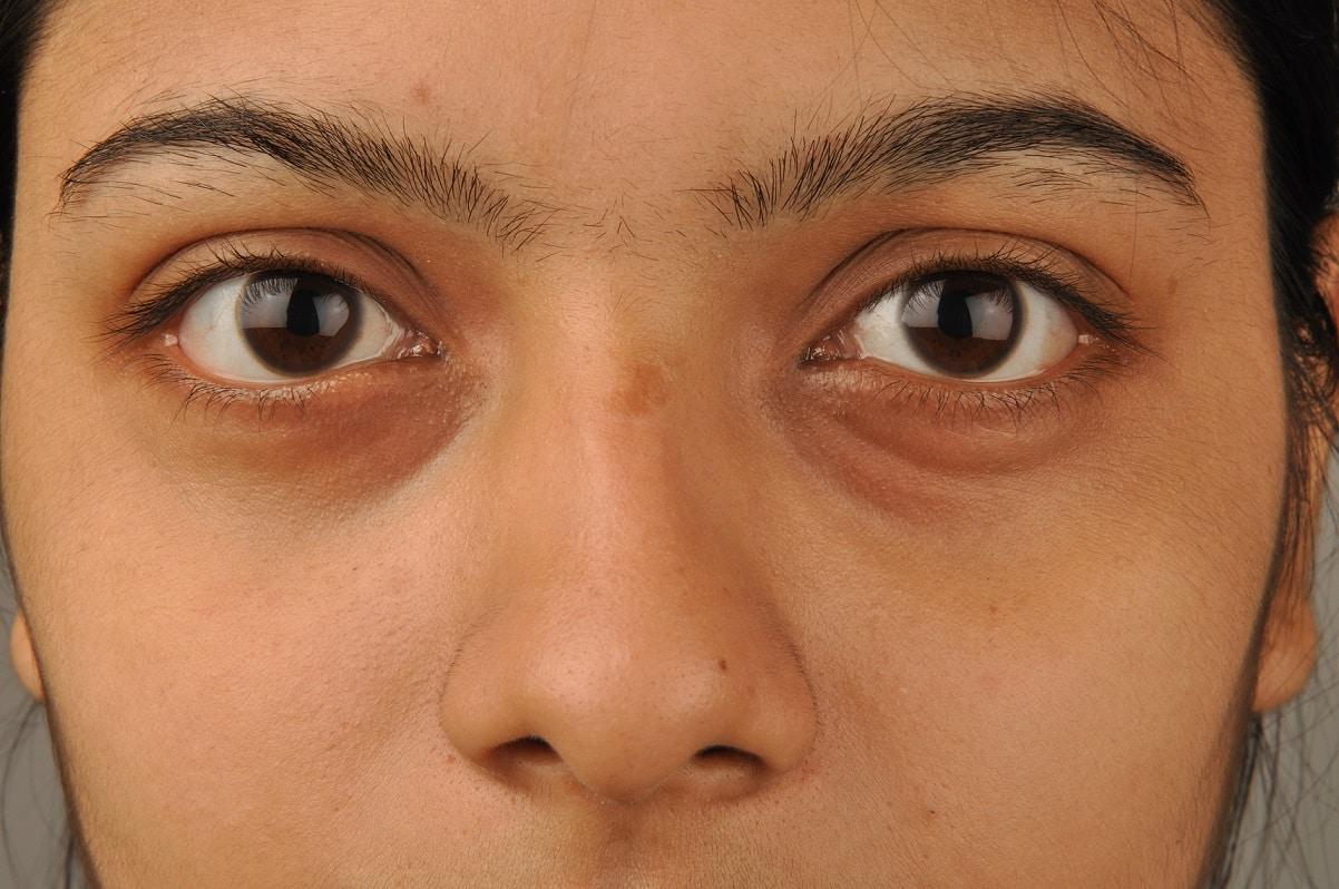 אישה עם עיגולים שחורים מתחת לעיניים