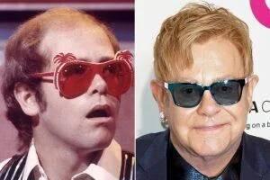 אלטון ג'ון לפני ואחרי השתלת שיער לגברים