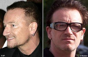בונו לפני ואחרי השתלת שיער לגברים
