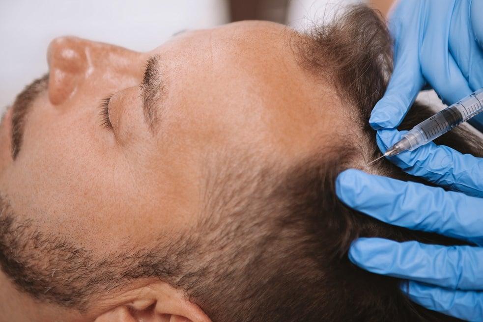 ביצוע של טיפול PRP לשיער בגבר