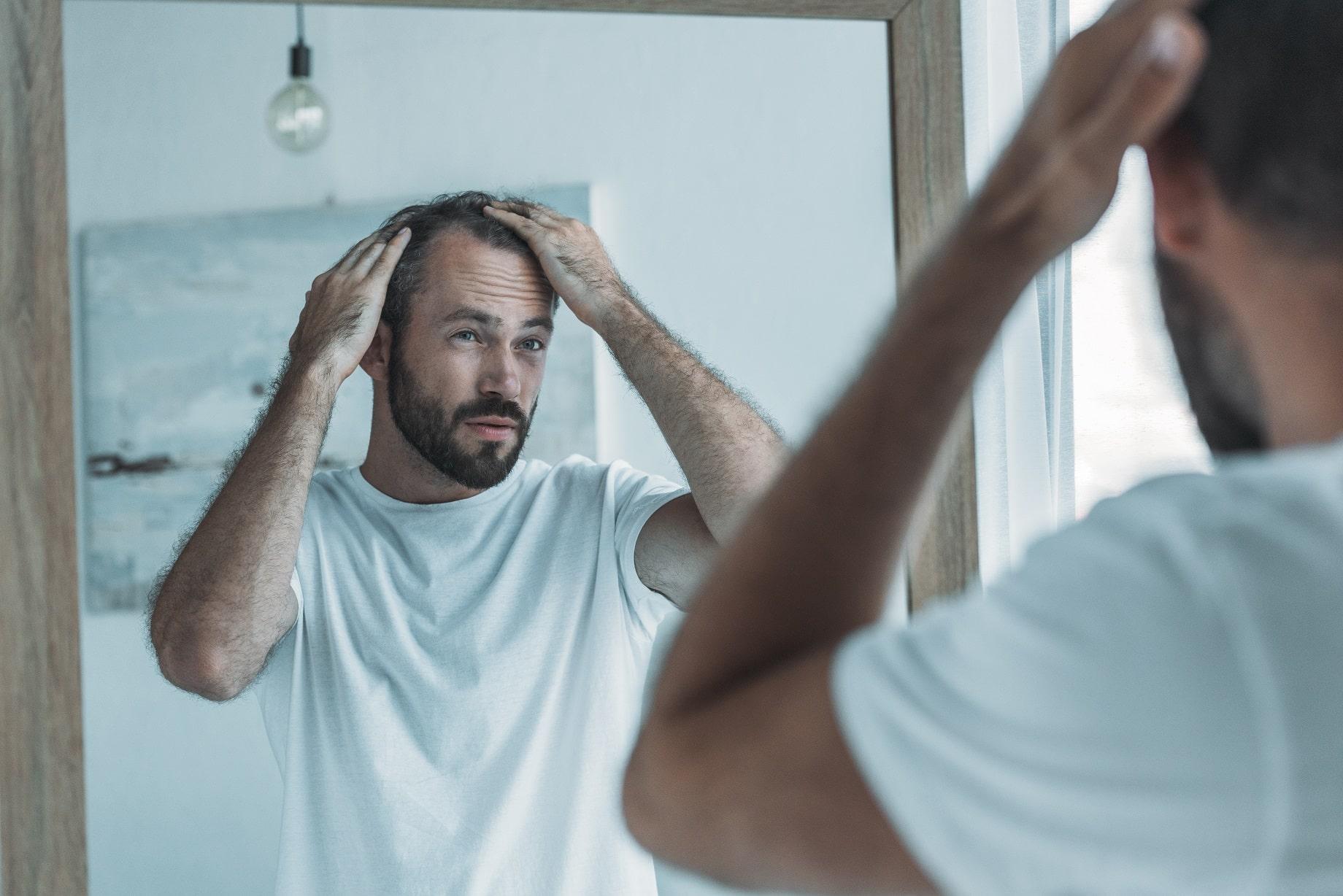גבר מסתכל במראה ובודק אם הוא סובל משיער דליל