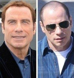 ג'ון טרבולטה לפני ואחרי השתלת שיער