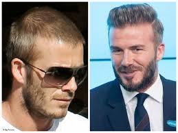 דיוויד בקהאם לפני ואחרי השתלת שיער לגברים