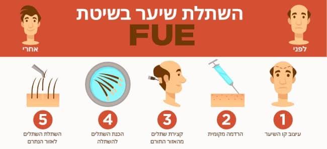 המחשה של השתלת שיער FUE
