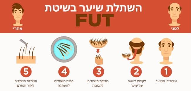 המחשה של השתלת שיער FUT