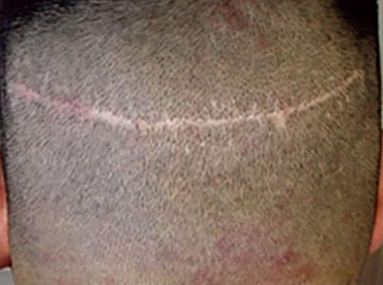 השתלת שיער סיכונים צלקת על הצד האחורי של הקרקפת