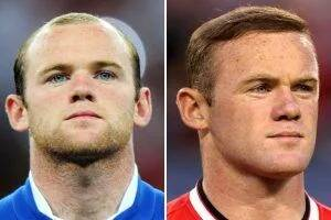 ויין רוני לפני ואחרי השתלת שיער לגברים