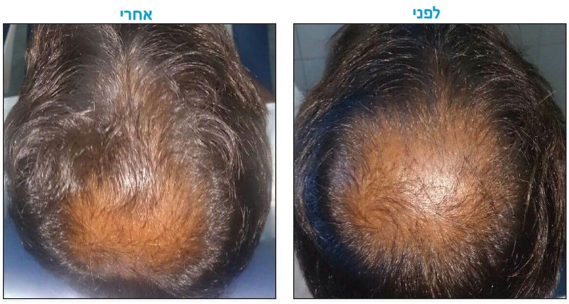 טיפול בנשירת שיער באמצעות פלזמה עשירה בטסיות לפני ואחרי