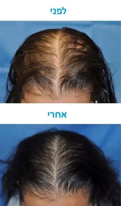 טיפול בנשירת שיער עם לייזר תמונה של לפני ואחרי
