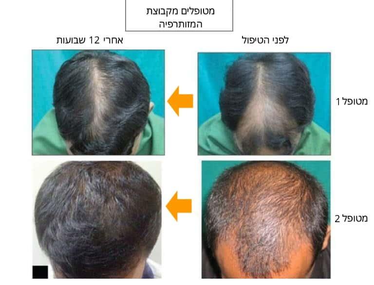 לפני ואחרי טיפול של מינוקסידיל ביחד עם דרמה רולר אחרי 12 שבועות