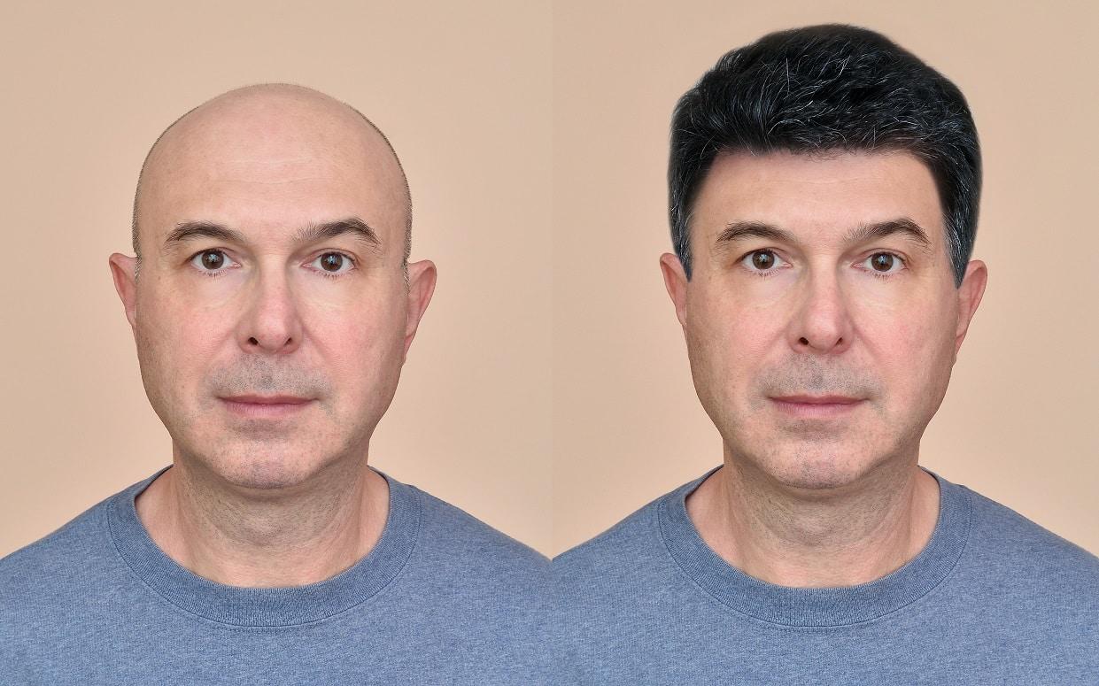 לפני ואחרי של גבר שעבר השתלת שיער