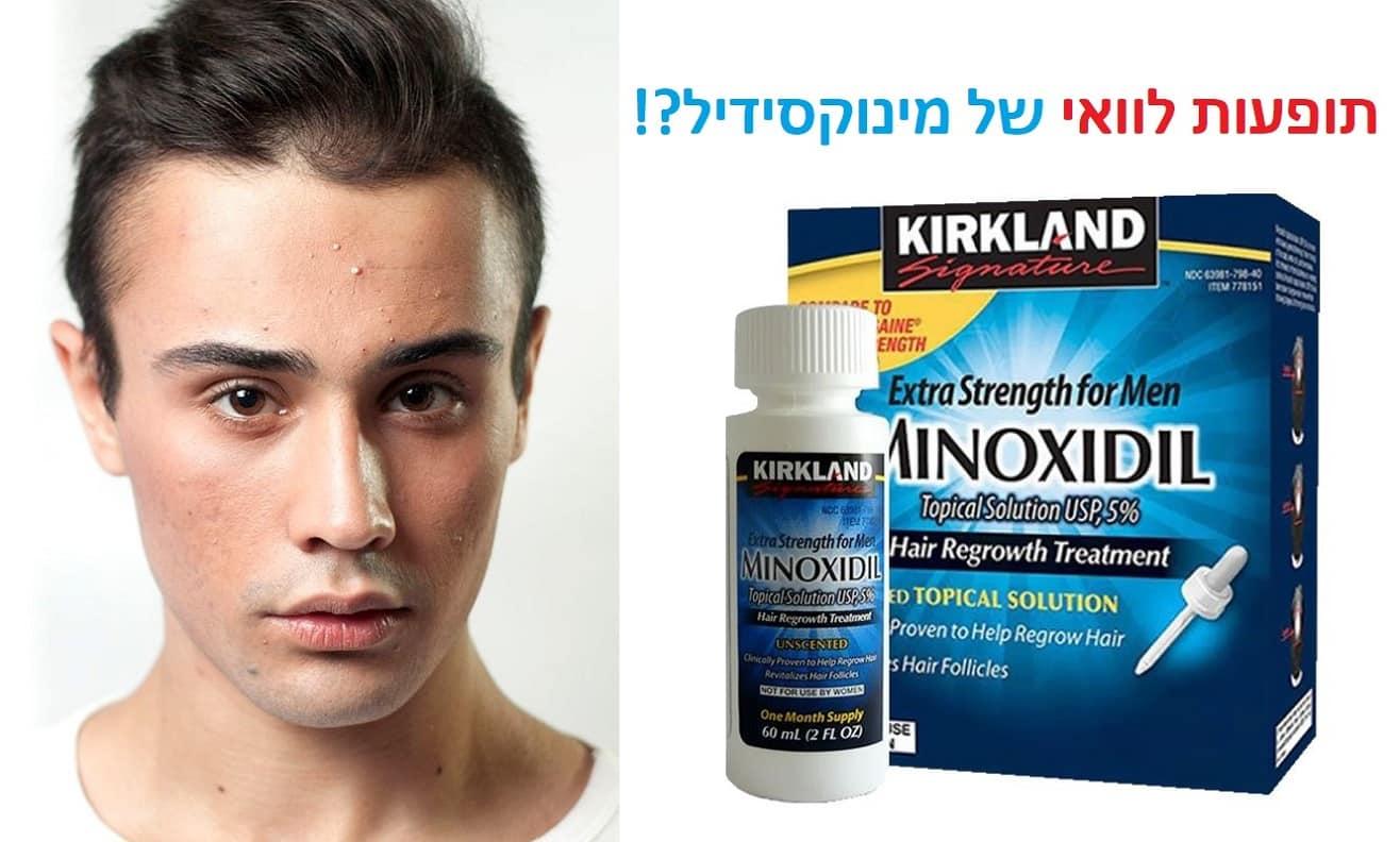 Photo of מינוקסידיל: 16 תופעות לוואי וסיבוכים נפוצים של מינוקסידיל