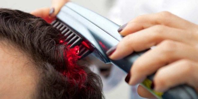 מסרק לייזר לנשירת שיער תמונה