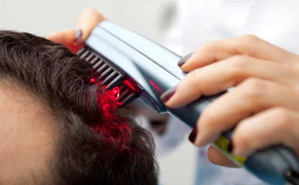 Photo of מסרק לייזר לנשירת שיער: טיפול מהפכני או בזבוז כסף?