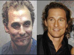 מתיו מקונוהיי לפני ואחרי השתלת שיער