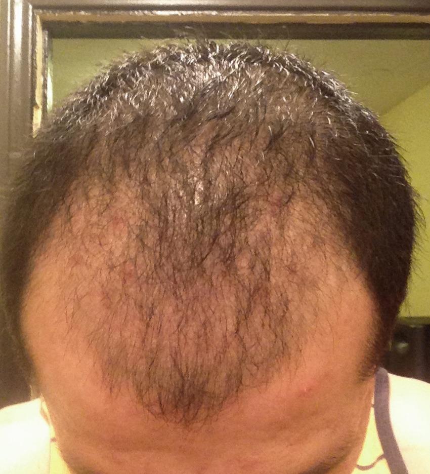 תופעת לוואי של דלקת זקיק השיער אחרי השתלת שיער