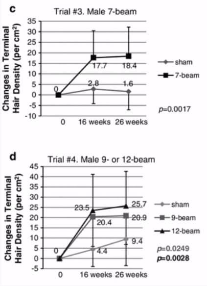תוצאות הניסוי של הצמחת שיער בלייזר קר LLLT על גברים