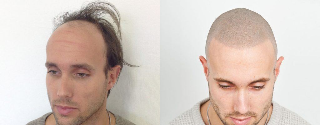 הדמיית שיער לפני ואחרי גבר לבן עם קוקו