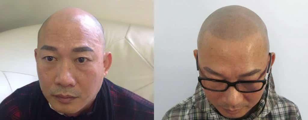 הדמיית שיער על גבר אסייתי לפני ואחרי