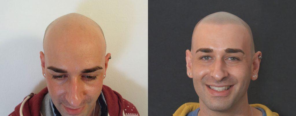 הדמיית שיער על גבר לבן עם עגילים באוזניים לפני ואחרי