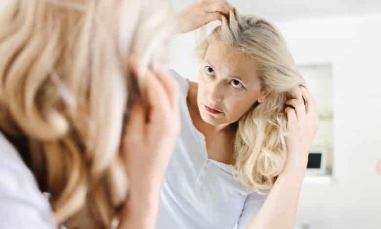 נשירת שיער בגיל המעבר