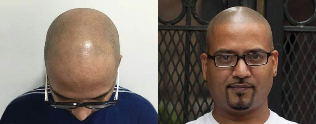 תמונה לפני ואחרי של הדמיית שיער על גבר שחור