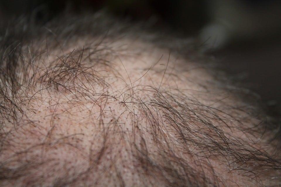 תקריב של נשירת שיער זמנית