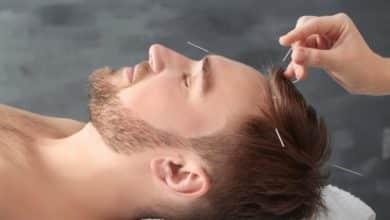דיקור סיני לנשירת שיער