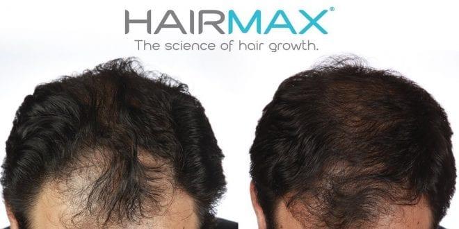 היירמקס hairmax