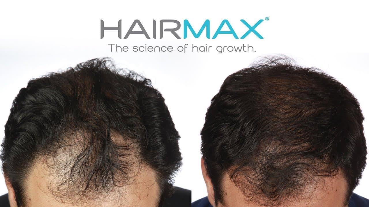 Photo of היירמקס: המדריך המלא על מוצרי חברת HairMax