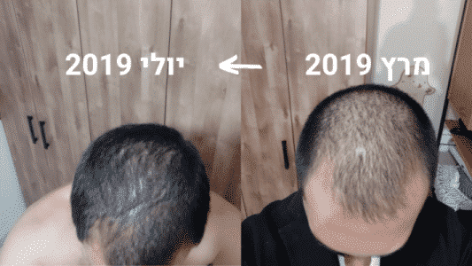 ויקטור לפני ואחרי HR Growth