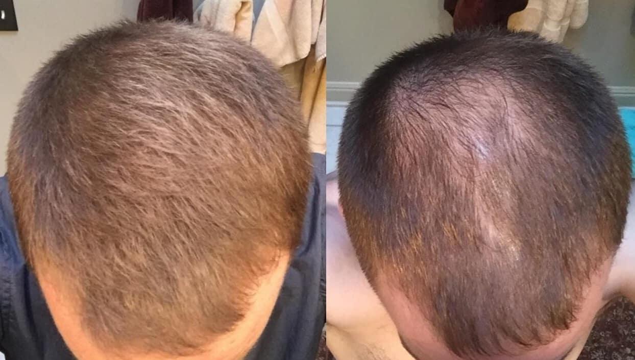 טופיק לשיער תמונה של לפני ואחרי על גבר
