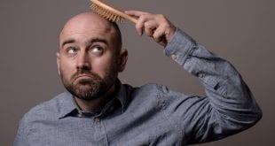 סיבות נשירת שיער התקרחות