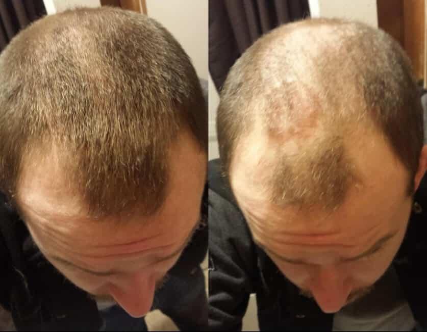 ספריי טופיק תמונה של לפני ואחרי גבר