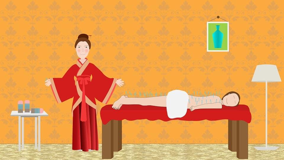 ציור של טיפול באמצעות דיקור סיני לנשירת שיער