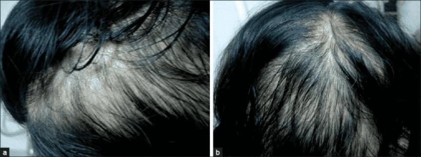 תוצאות הטיפול באמצעות מזותרפיה לשיער אצל אישה