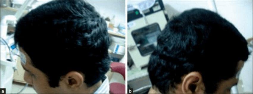 תמונה של גבר אחרי שלושה טיפולים של מזותרפיה לשיער
