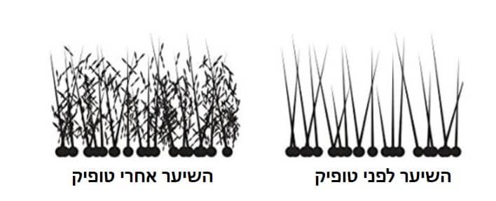 תמונה שממחישה איך הטופיק מתחבר לשיער