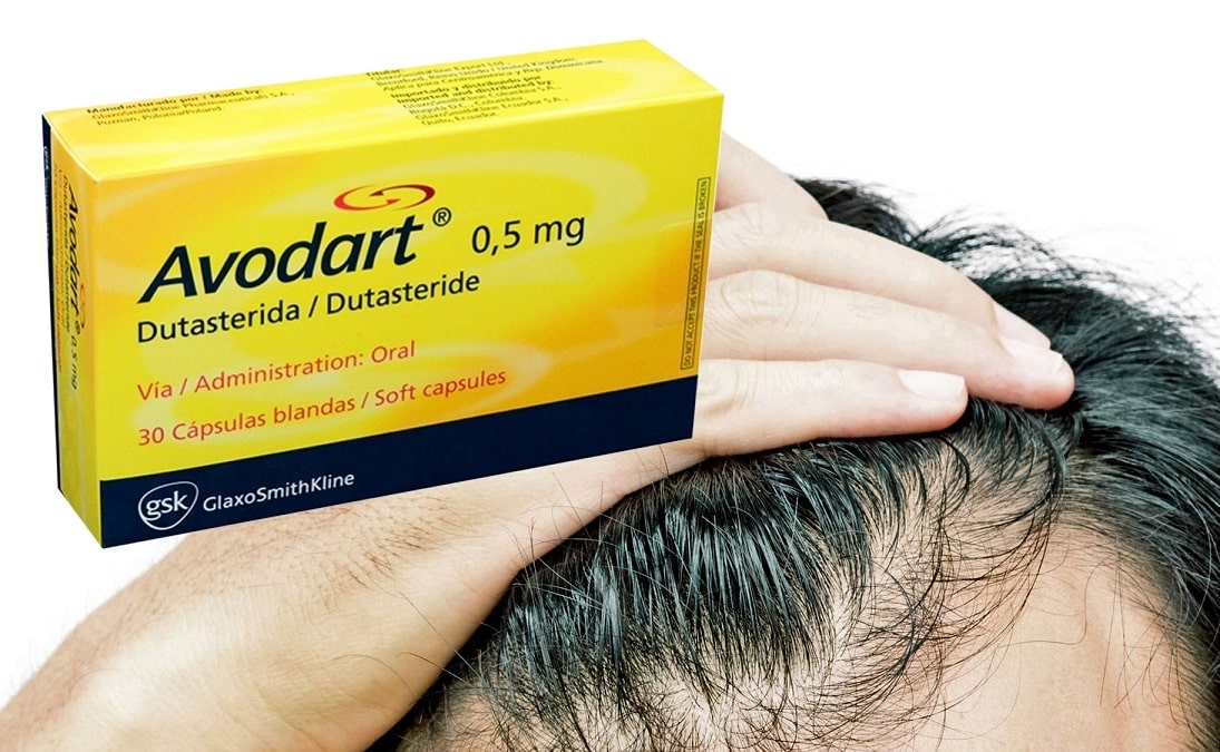 Photo of אבודרט (דוטסטריד): היתרונות והחסרונות של אבודרט להצמחת שיער