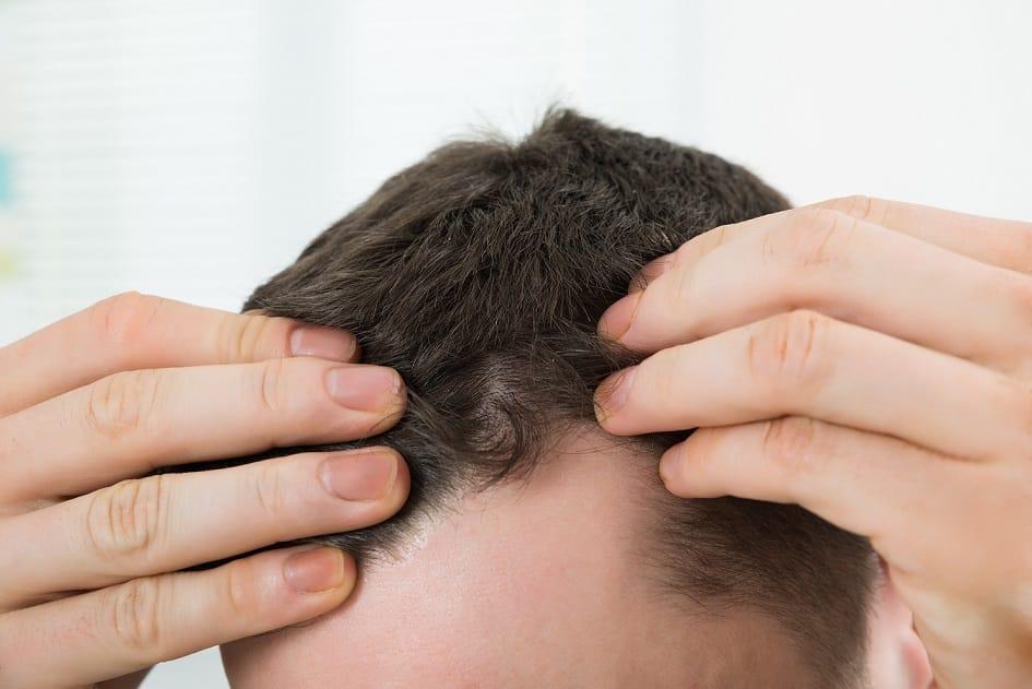 נסיגת שיער קו שיער נסוג