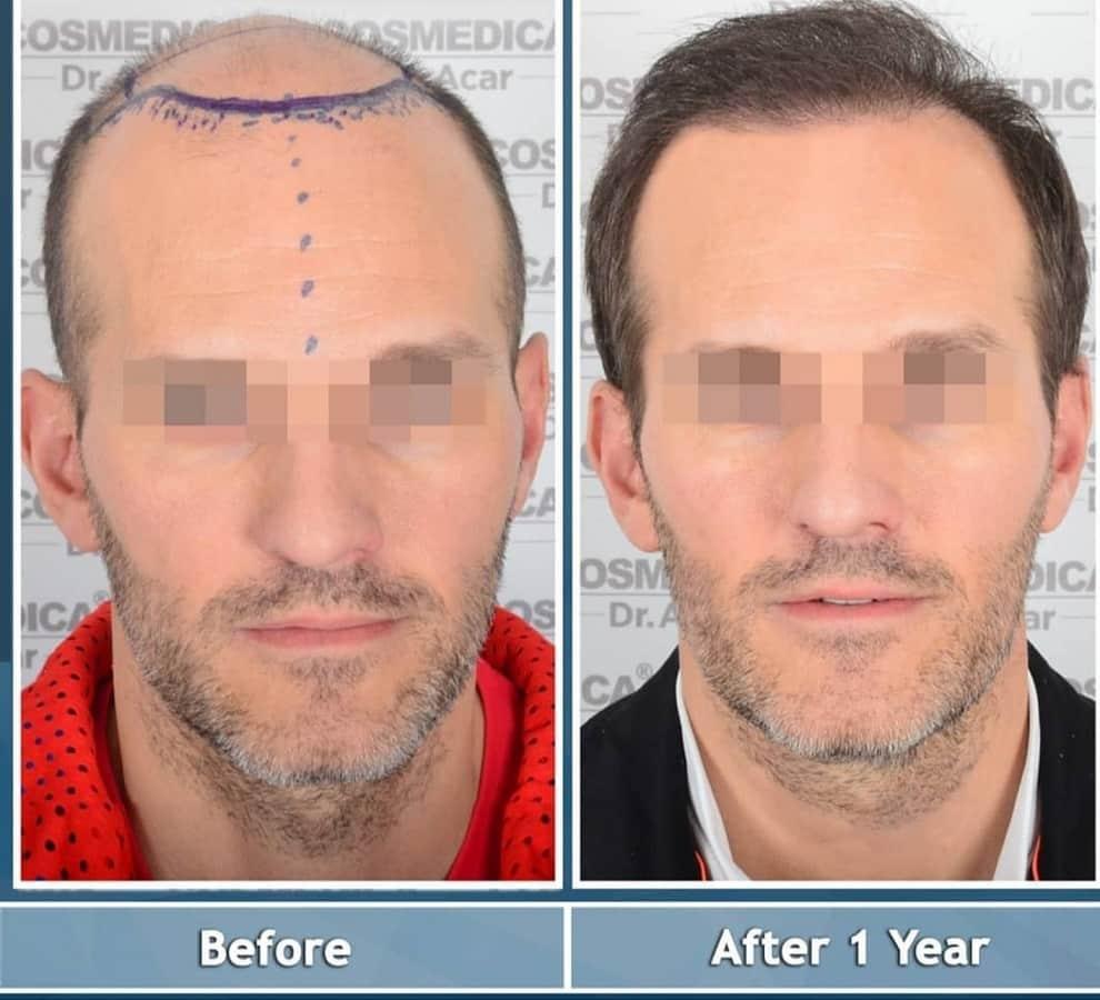 גבר עם אזור תורם מוגבל אחרי השתלת שיער בטורקיה