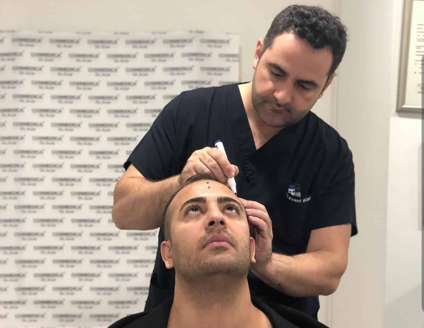 דר אקאר מתכנן את קו השיער של השתלת שיער בטורקיה