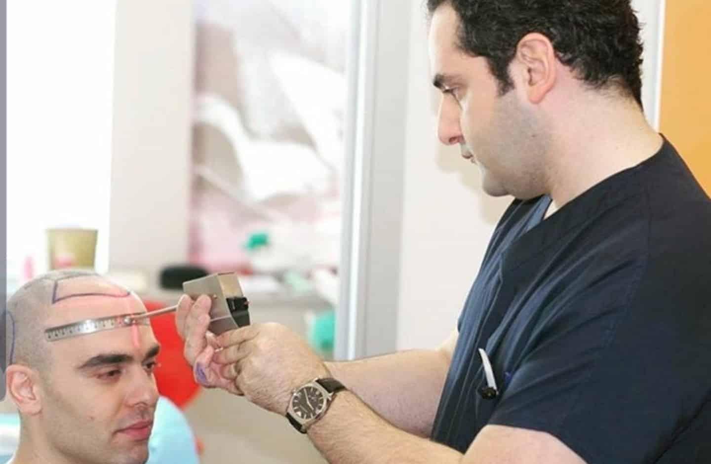 דר אקאר מתכנן קו שיער מקצועי של השתלת שיער בטורקיה
