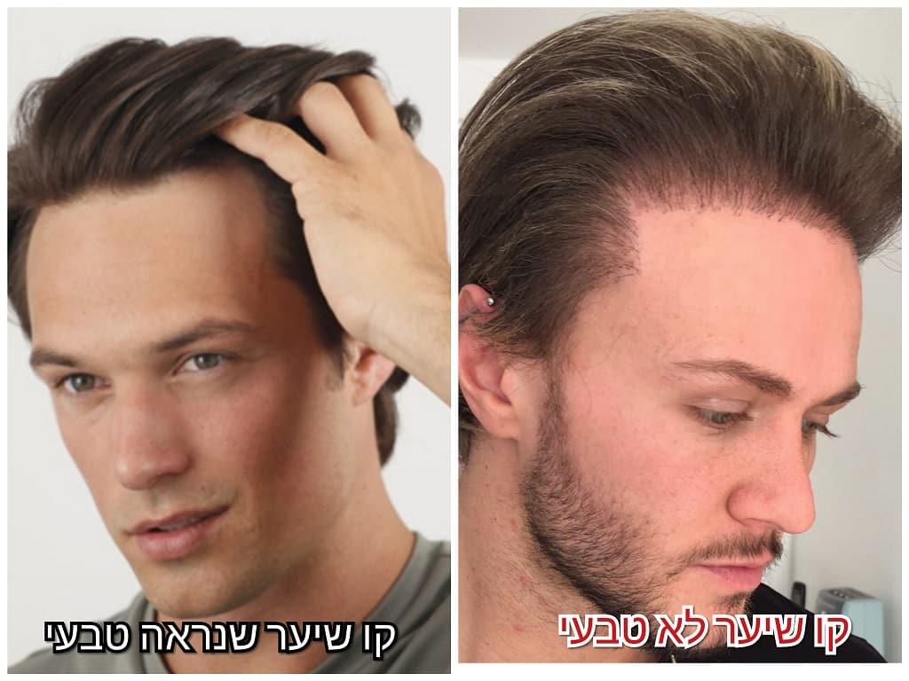הבדל בין קו שיער טבעי לבין קו שיער לא טבעי