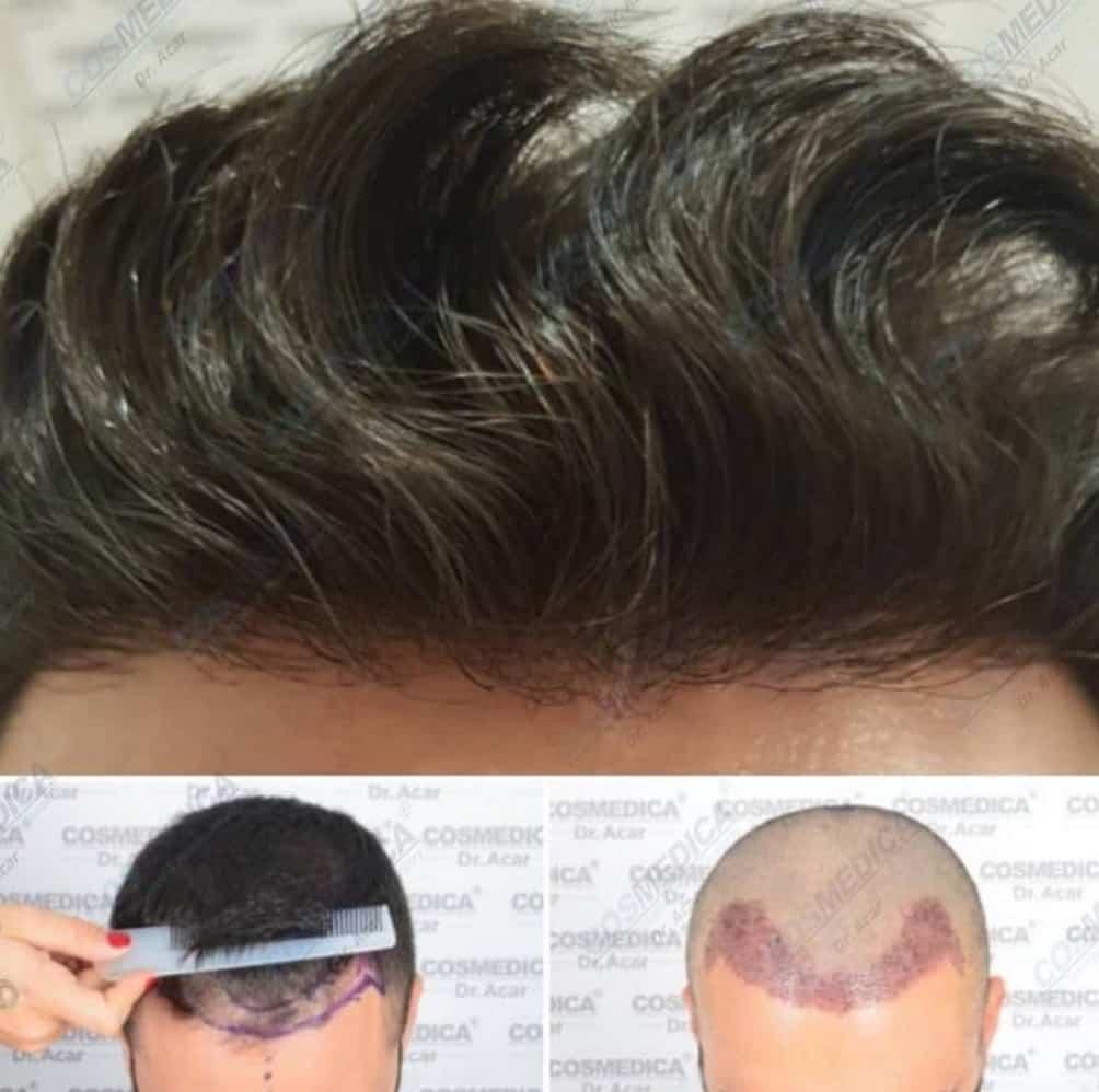 הדגמה ליצירת קו שיער טבעי השתלת שיער בטורקיה