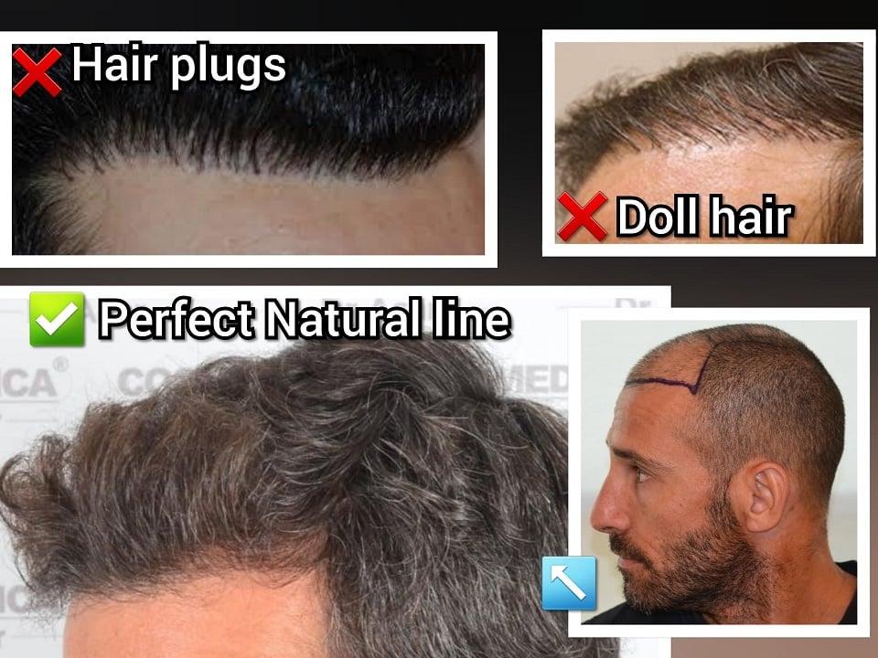 ההבדלים בין השתלת שיער מושלמת לבין השתלת שיער כושלת