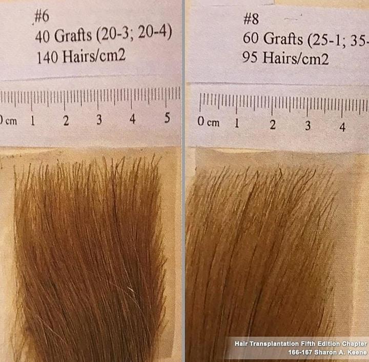 השוואה בין 60 זקיקים לבין 40 זקיקים לסנטימטר