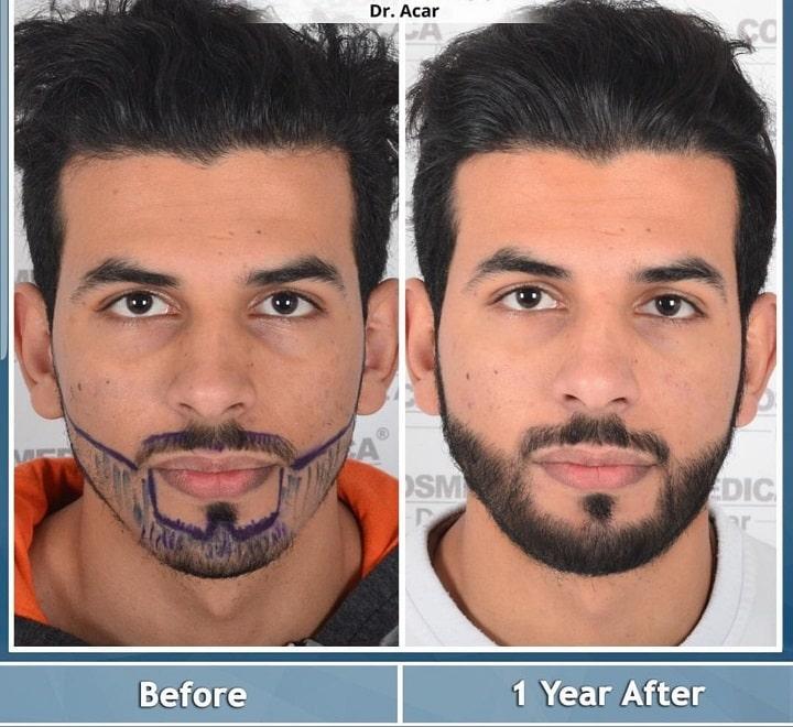 השתלת זקן בטורקיה לפני ואחרי