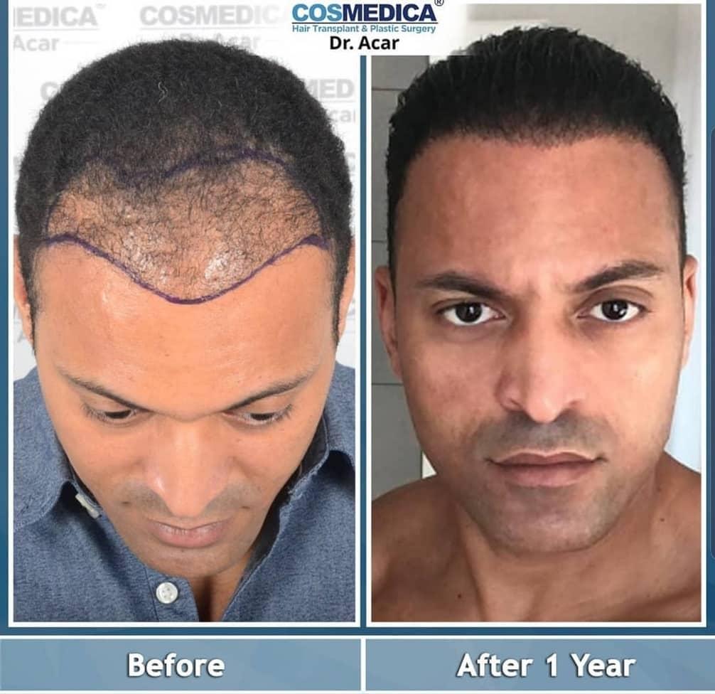 השתלת שיער אפרו לפני ואחרי שנה אחת